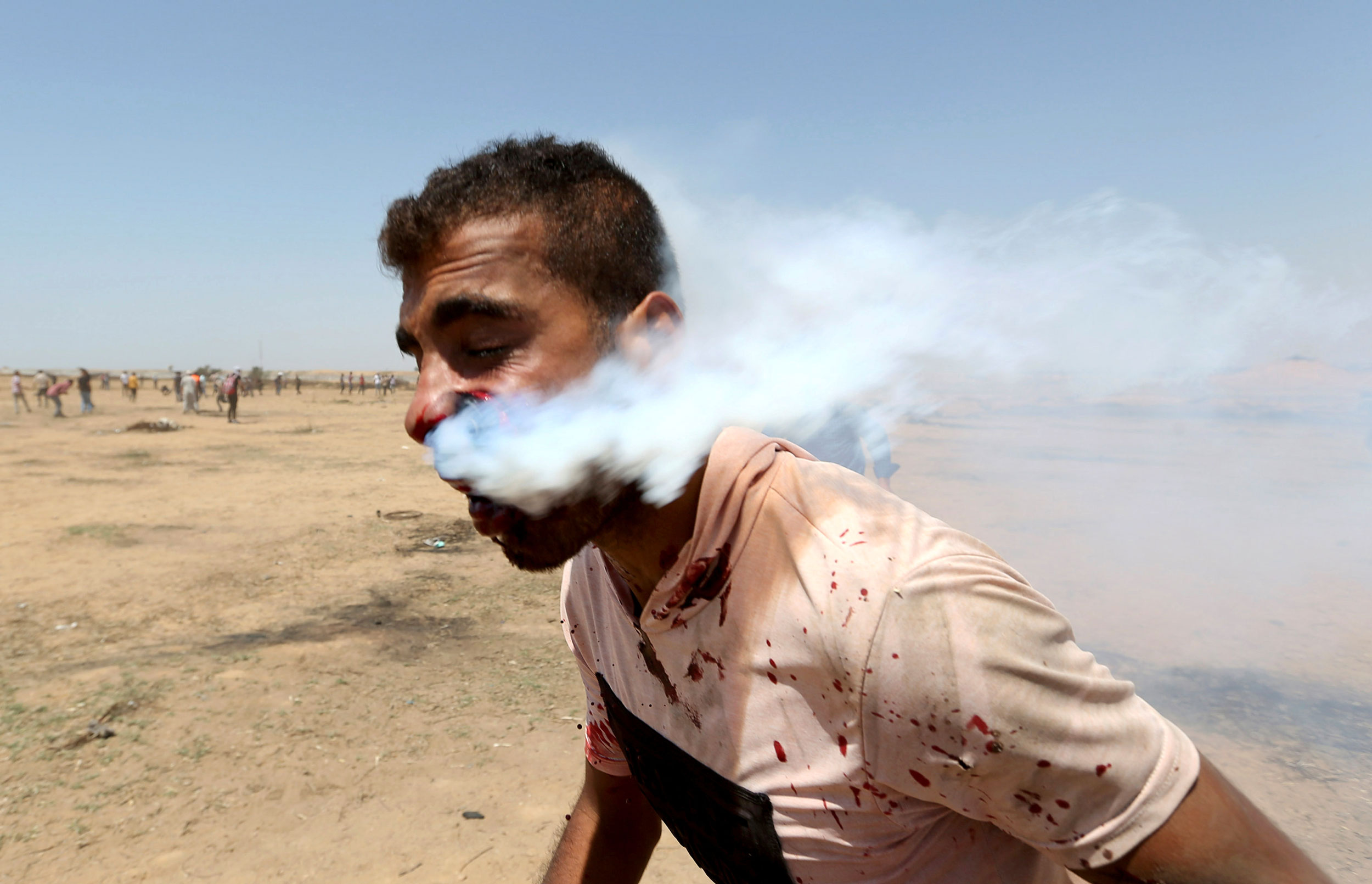 Tear gas streams from a man's face after he is hit in the face with a tear gas canister