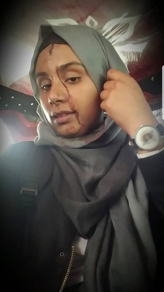 Selfie of woman wearing a gray hijab with bloody trickling down her face.