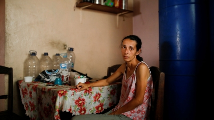 A skinny and malnourished woman poses for a picture while sitting at a table at her home in Caracas, Venezuela.