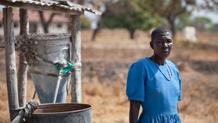 In this photo taken Thursday, Feb. 12, 2015, Anna Acheng, a 45-year-old who was abducted by the Lord's Resistance Army (LRA) and whose left ear was partly sliced off by them, stands near her home in the Barlonyo displaced persons camp in northern Uganda.