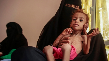 A woman holds a malnourished boy at the Aslam Health Center, in Hajjah, Yemen