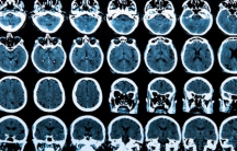 MRI scan of the human brain, from Shutterstock