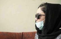 Zahra, a Hazara, at Dr. Zalmai Khan Ahmadzai's clinic in Kabul. She says she wants to get a nose job.