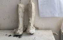 Temporary cast of Jad's legs at the workshop at the NSPPL center in Reyhanli, Turkey. Specialists will use these to make the permanent braces that will help Jad walk.