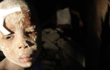 A boy waits for medical attention in Port-au-Prince, Haiti, after 2010 earthquake.