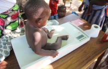 Malnutrition1