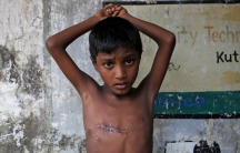 Mohammed Shoaib, 7, who was shot on his chest before crossing the border from Myanmar in August, shows his injury