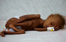 Salem Abdullah Musabih, 6, lies on a bed at a malnutrition intensive care unit at a hospital in the Red Sea port city of Hodaida, Yemen, Sept. 11, 2016. Millions of Yemenis face food shortages and the threat of famine after more than two years of civil wa