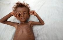 Yemen famine child