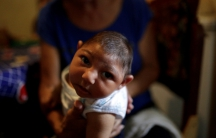 Three-month-old Jesus, photographed on Oct. 5 in Guarenas, Venezuela, was born with microcephaly