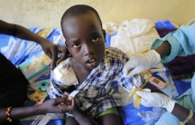 A wounded child undergoes medical treatment in Juba, South Sudan, Dec. 28, 2013.