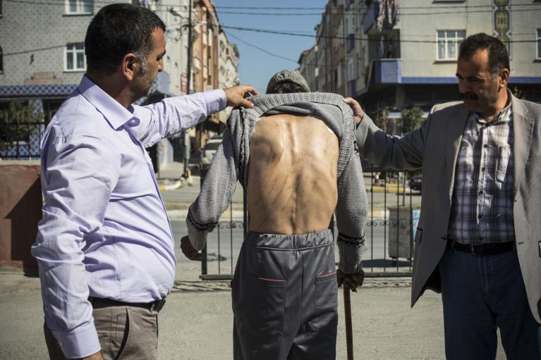 A Syrian man bears scars on his back. He says that he was beaten by rebels in Syria.