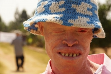 Ostracized in Tanzania, this community of albinos sing songs of acceptance