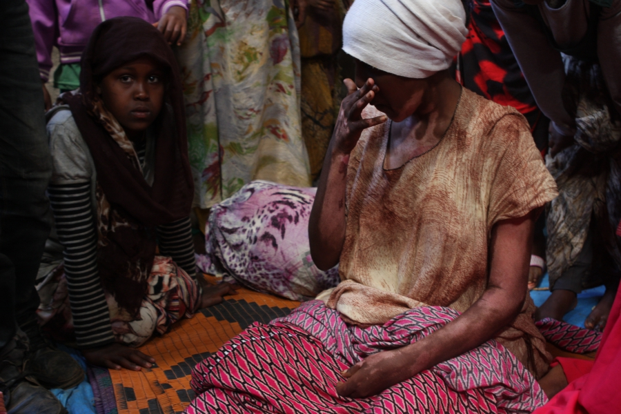 This woman at a camp for displaced Oromo outside Harar, Ethiopia, says she suffered burns on her arms and neck during her eviction from the Somali region.