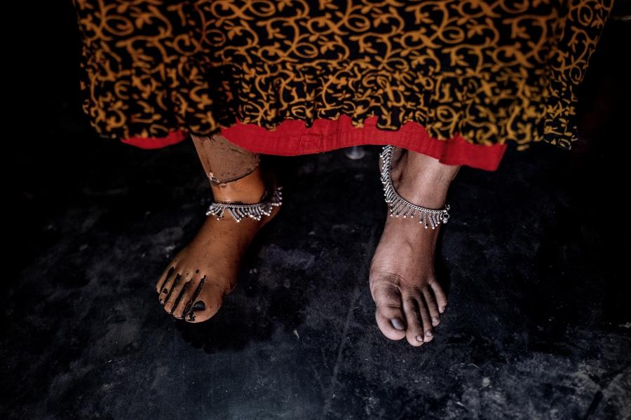 Close up of Arati Baladas' feet. She has a prosthetic foot.