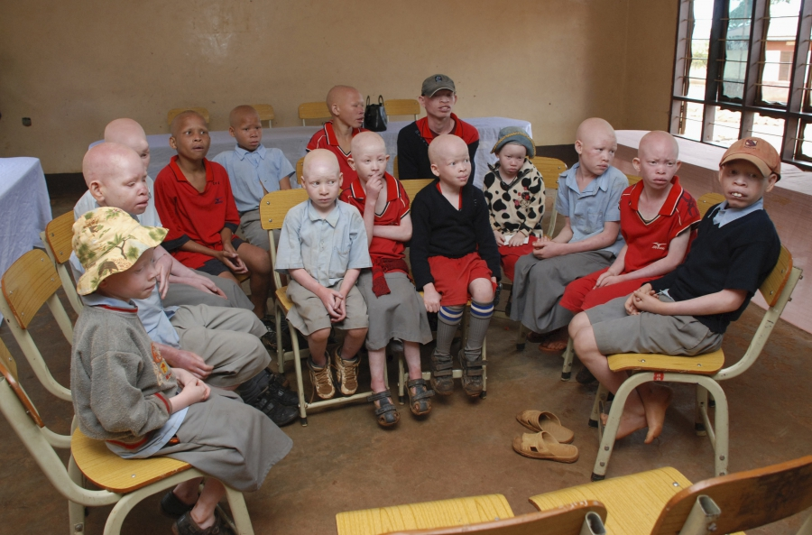 Children with albinism sit at the Golden Valley English Medium School, a school sponsored by Under the Same Sun (UTSS), in Geita November 24, 2011.