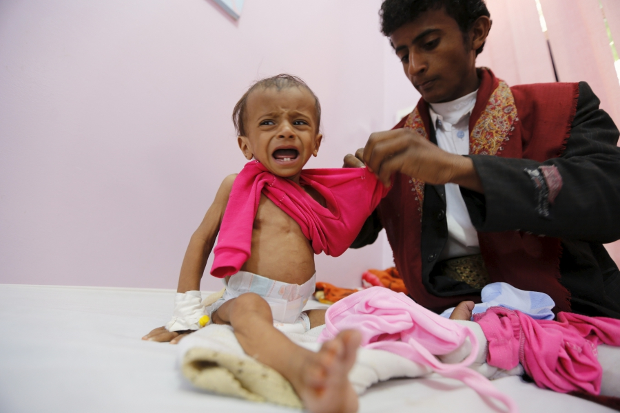 A man dresses his malnourished daughter at a malnutrition intensive care unit in Yemen