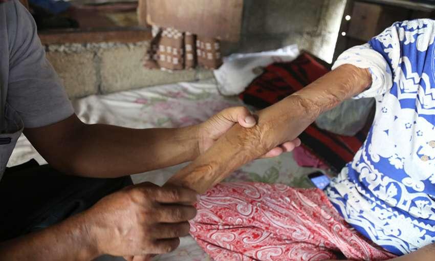 Saraswoti's arm