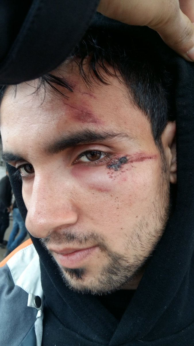An Afghan asylum-seeker provided images of what he said were injuries other migrants sustained from Hungarian authorities.