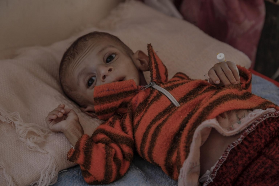 According to the head of pediatrics, cases of malnutrition in al-Gomhouri hospital in Saada have risen by 400 percent since the start of the conflict.