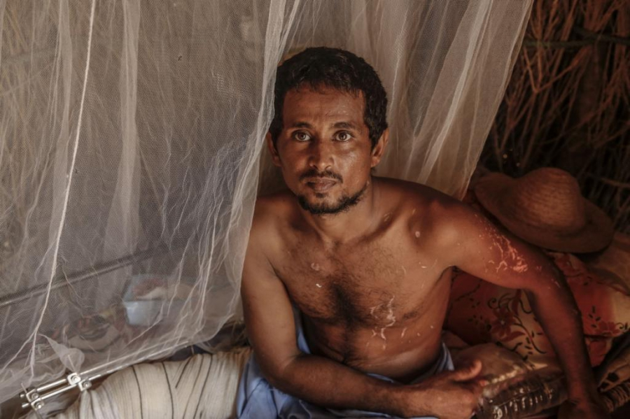 Ali al-Baghawi worked as a fisherman for 21 years. He was injured in an aerial attack at sea that killed dozens of his friends and colleagues. Though fishing was his livelihood he now says he will never return to the water.