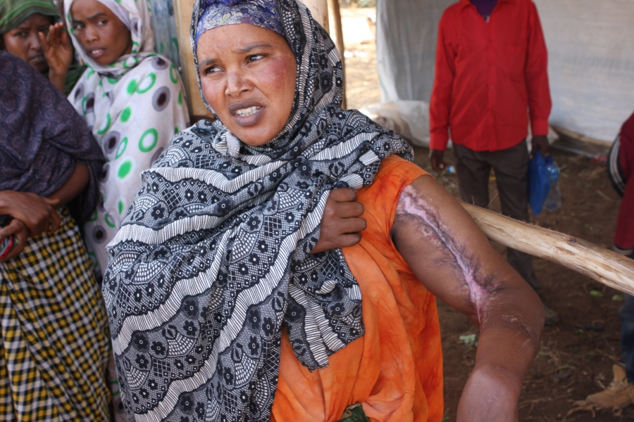 At a camp for displaced Somalis in Kolenchi, this formerly prosperous businesswoman from Aweday was burnt during the riot and lost everything she owned.