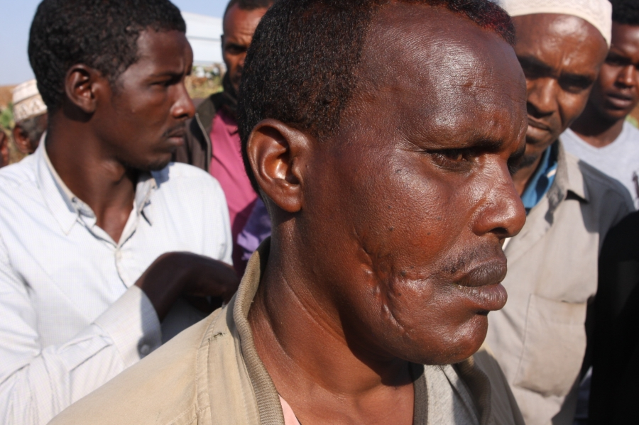 At a camp for displaced Somalis in Kolenchi, this man was allegedly shot in the face by Oromo police. On the other side of his face are other bullet wounds from when the police shot him while he was lying on the ground afterwards.