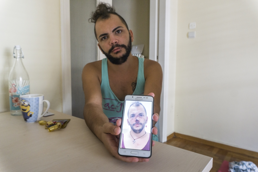 Lawrence Alatrash shows a photo of himself brutally beaten, which he took with his mobile phone after he was attacked and raped by three other Syrian refugees in downtown Athens, Greece.
