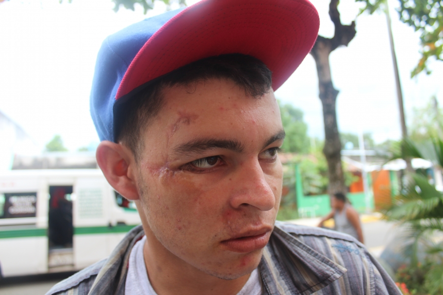 a nicaraguan man shows the scars from being beaten up by pro-government forces
