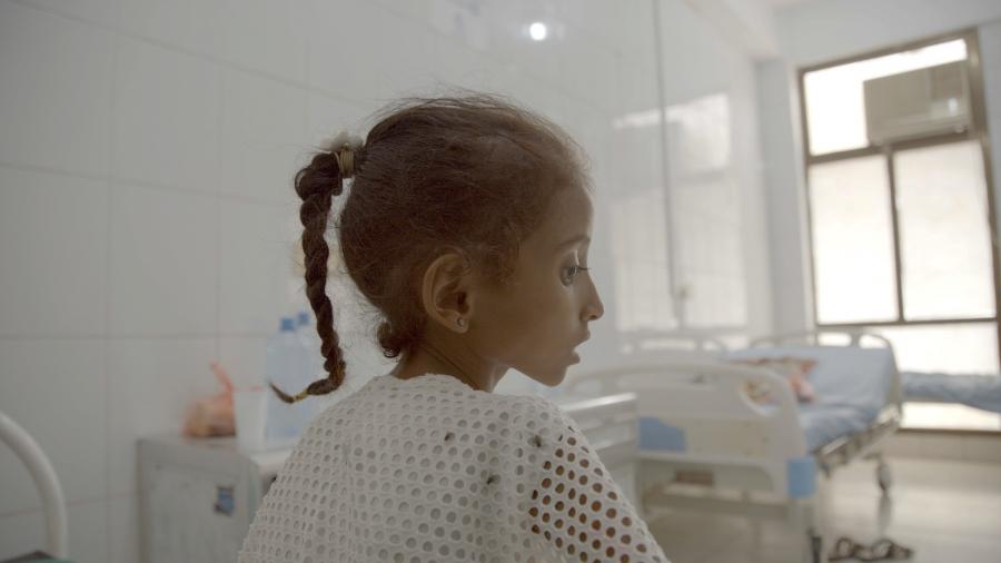 A Yemeni child suffering from malnutrition