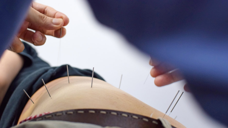 closeup of an acupuncturist's hands inserting needles