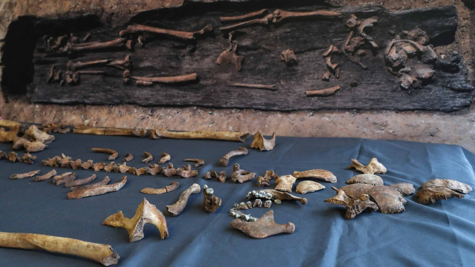 Human bones are laid out on a blue cloth. Behind them is a photo of them in the earth