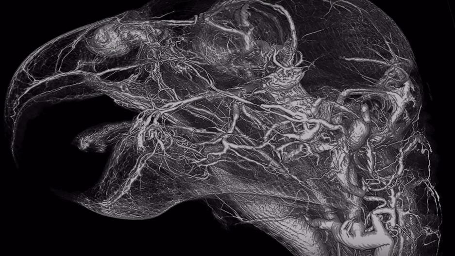 new vascular imaging models