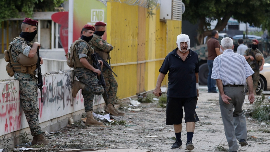 A man is shown walking on the street with a white bandage around his head with security officers standing nearby.