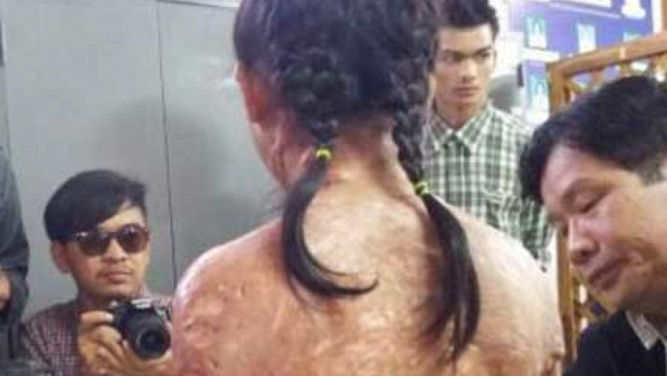 Broadband penetration map Asian girl torture free lesbian pics pic
