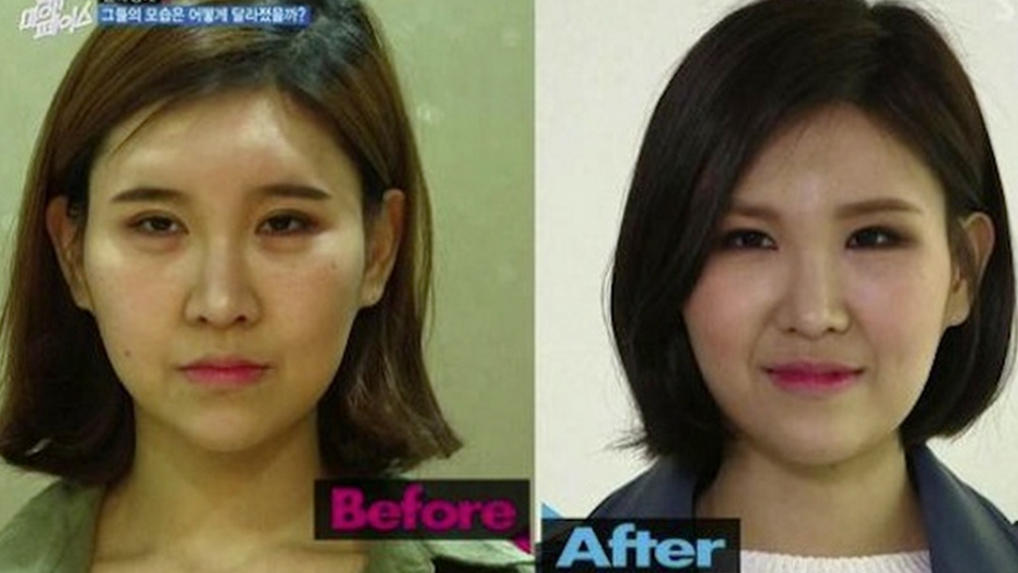 Korean reality show aims to undo excessive plastic surgery | Public