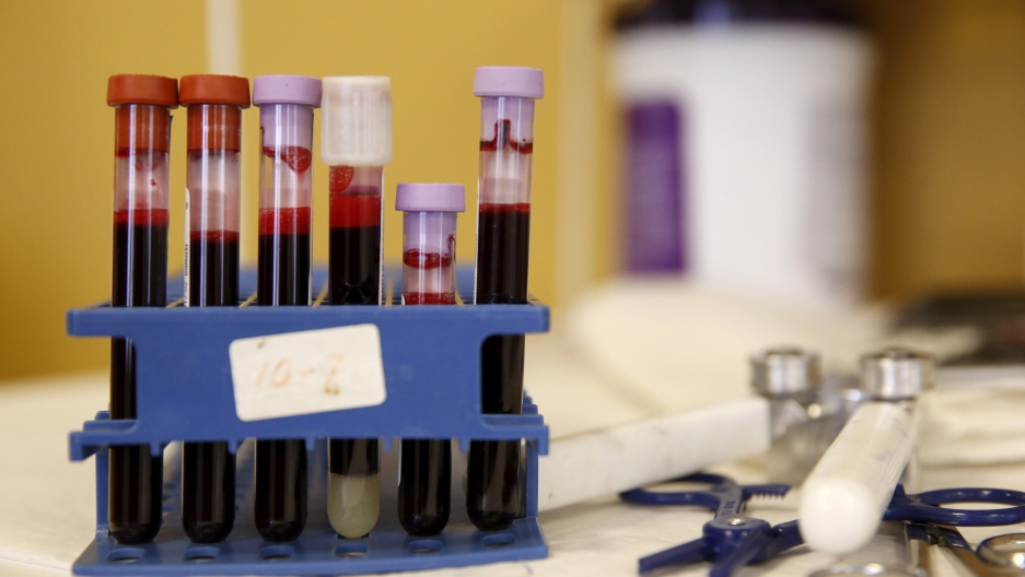Testing tubes full of blood are seen at the American Red Cross Charles Drew Donation Center in Washington on Feb. 16.