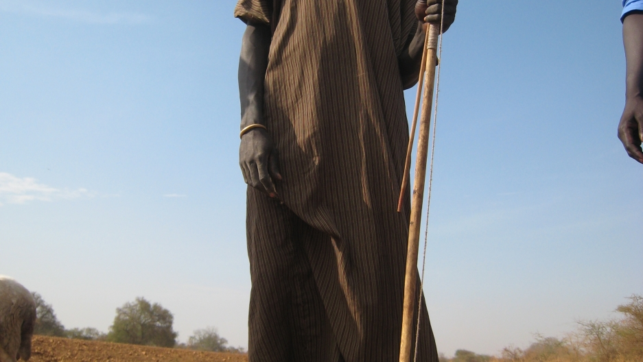 Herder Garbino Kenyi, his ankle bandaged for Guinea worm treatment.
