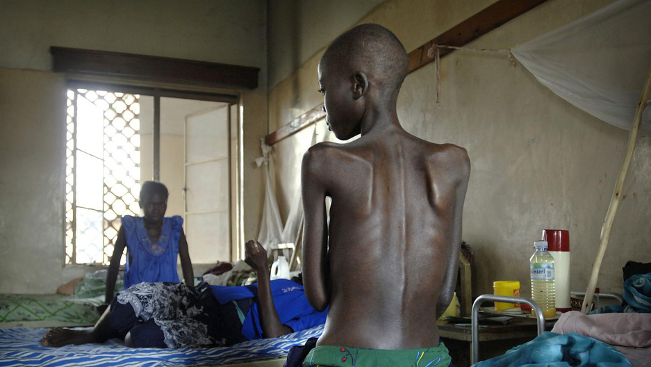 A patient sits in the isolation ward of the general hospital in Arua, Uganda, December 2005. Most patients in this ward are suffering from opportunistic infections and diseases related to HIV and AIDS.