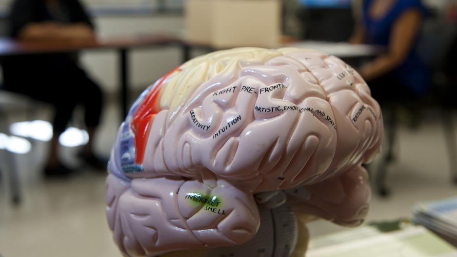 brain edit