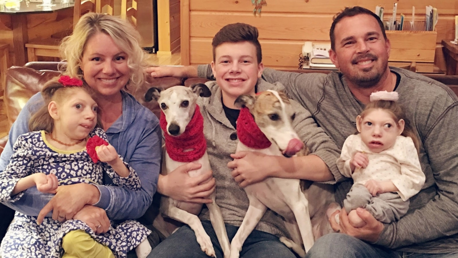 The Hartley family. (Left to right) Gwen holding Claire (age 14); Cal (age 17); Scott holding Lola (age 9); and their two whippets, Romeo and Cash.