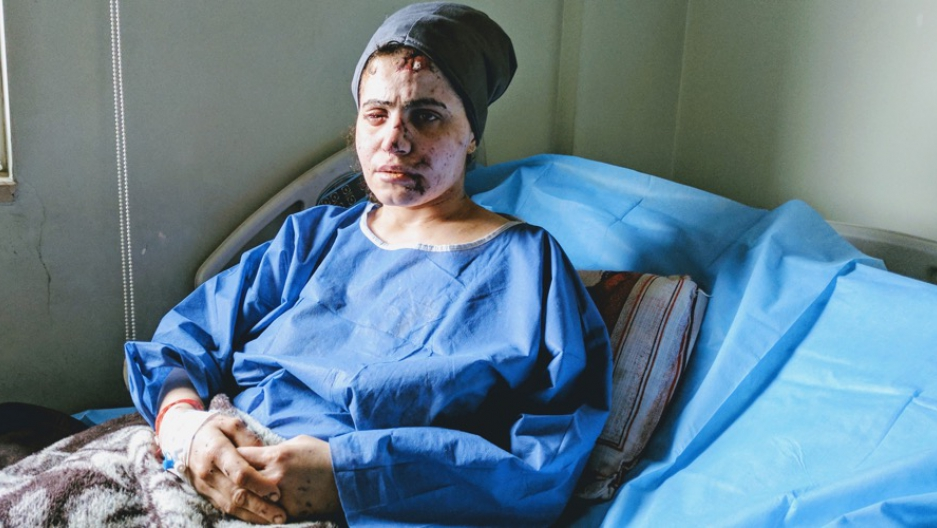 Lina Shahab is recovering in a hospital in Erbil, northern Iraq, after surviving an airstrike in Mosul.