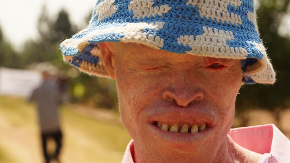 Musa of the Tanzania Albinism Collective