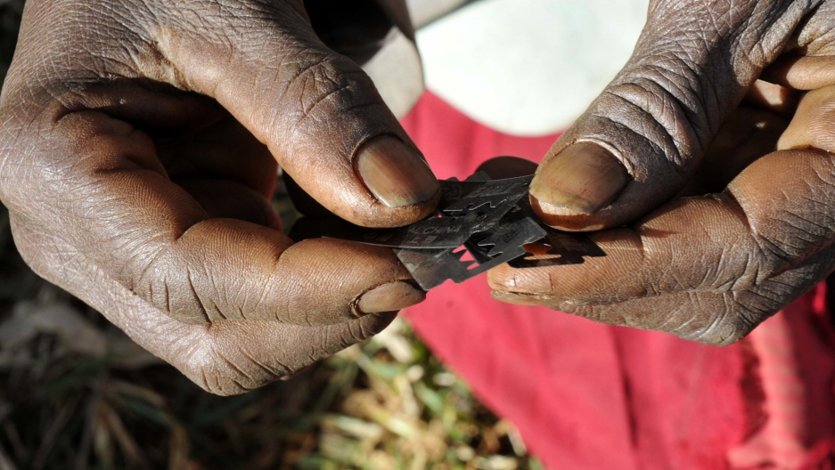 Prisca Korein, a 62-year-old traditional surgeon, holds razor blades before carrying out female genital mutilation on teenage girls from the Sebei tribe in Bukwa district, about 357 kms (214 miles) northeast of Kampala, December 15, 2008.