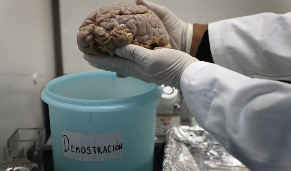 Jose Luna, an Alzheimer's researcher, shows an Alzheimer's patient's brain at Insituto Politecnico in Mexico City.