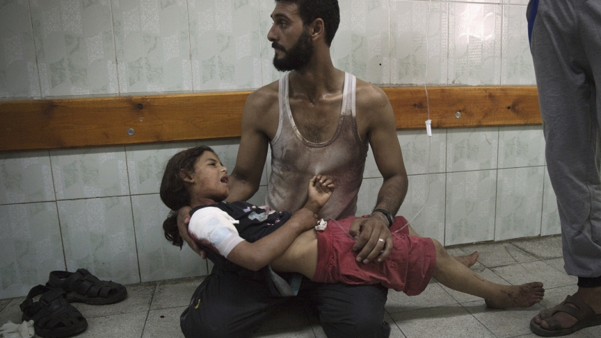 A Palestinian man holds a girl at a hospital in the northern Gaza Strip. Medics said she was injured in shelling at a U.N-run school sheltering Palestinian refugees on July 24, 2014.