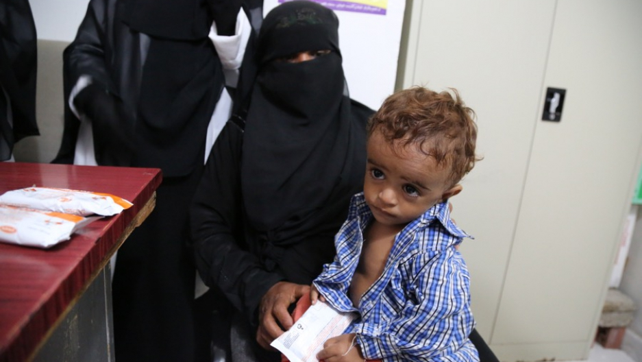 Ahmed, 3 years old, in a hospital in Hajjah receiving treatment for moderate acute malnutrition.