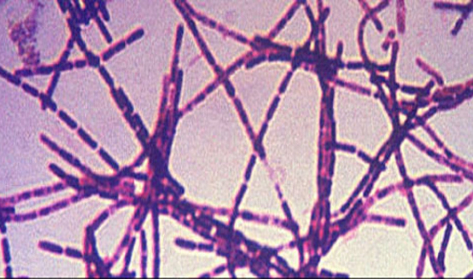 According to the CDC, anthrax is a serious disease caused by a rod-shaped bacteria known as Bacillus anthracis. Anthrax can be found naturally in soil and commonly affects domestic and wild animals around the world.