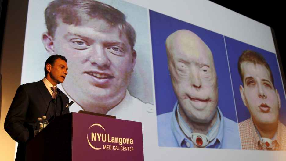 10 years, 36 operations, Face transplants are still tricky