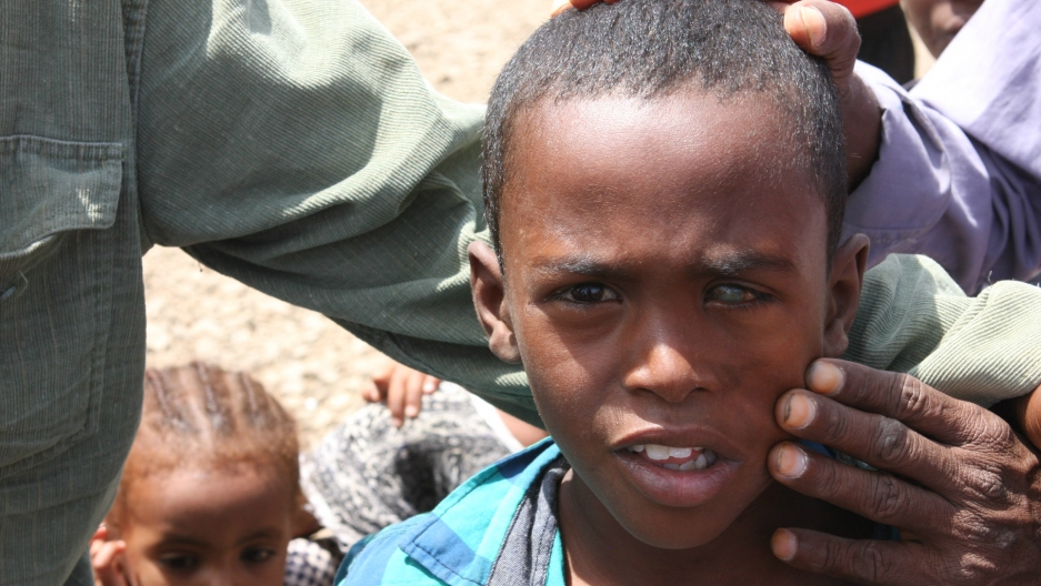 At a camp for displaced Ethiopians outside Dire Dawa, it's claimed that this Somali boy lost the sight in his left eye after Oromo police threw a rock that hit him in the face. Ethiopia is experiencing one of its worst population displacements due to viol